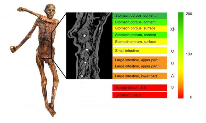 Scientists discover helicobacter pylori in the contents of Otzi's stomach