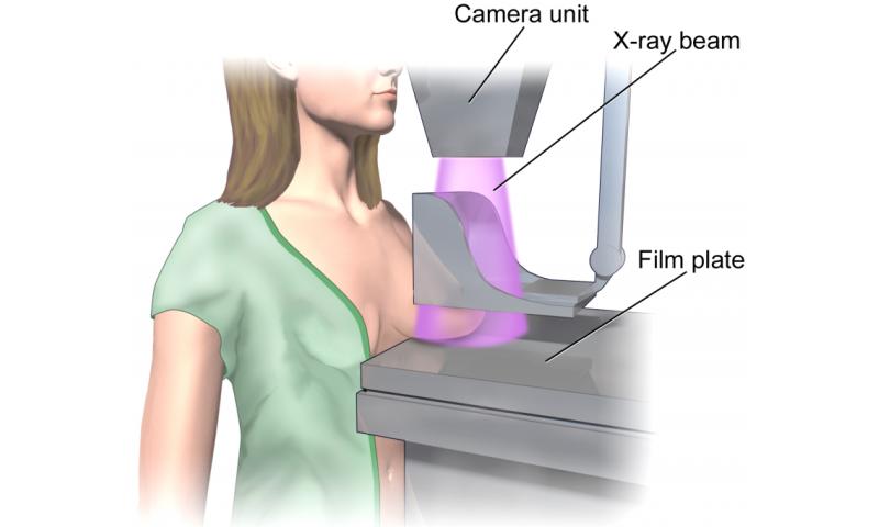 mammography, mammogram