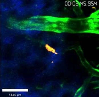 Visualizing a parasite crossing the blood brain barrier