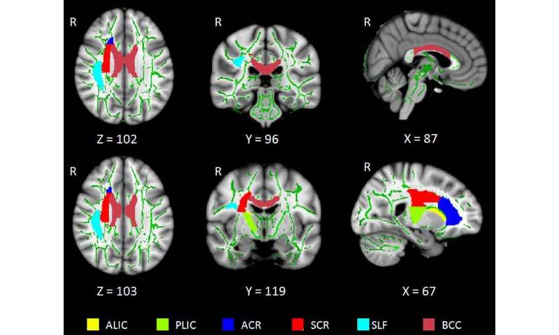 Insomnia linked to damage in brain communication networks