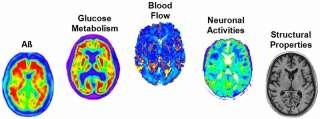 'Big Data' study discovers earliest sign of Alzheimer's development