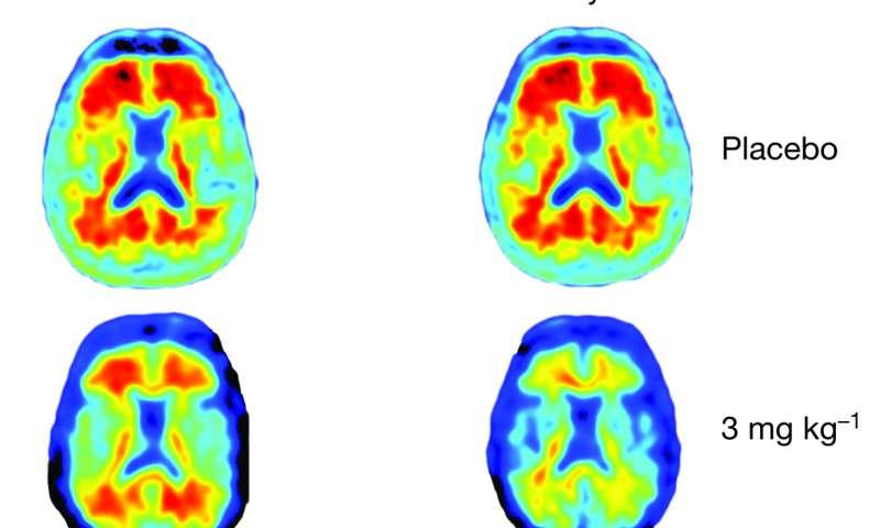 Trial Drug Shows Impressive Alzheimer S Action Study