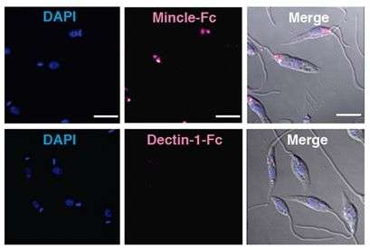 CNIC researchers identify a mechanism through which the Leishmania parasite sabotages the immune response