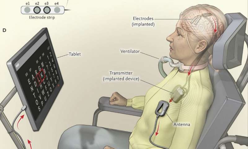 First home-use implant allows ALS patient to communicate in everyday life