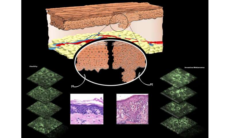 Noninvasive microscopy technique allows for spotting skin cancer in mitochondria