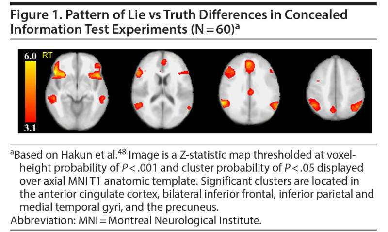 Illuminating lies with brain scan outshines polygraph test, Penn study finds