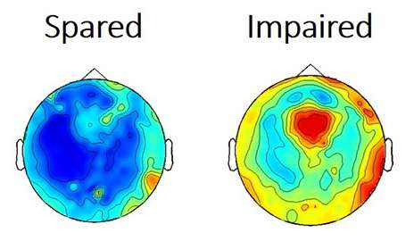 Researchers find widespread disruption of brain activity during absence seizures