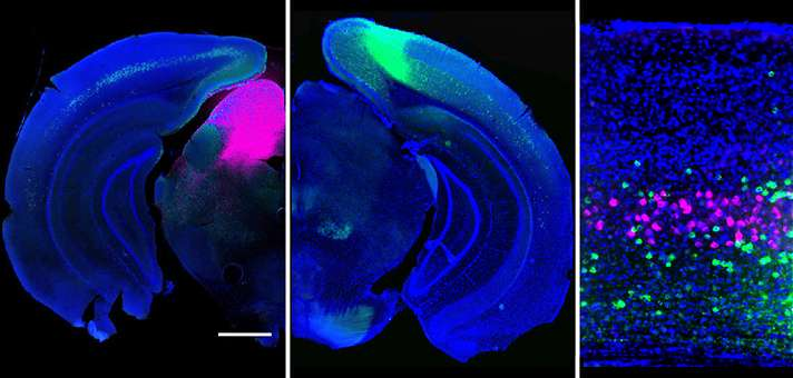 Researchers track how brain routes visual signals