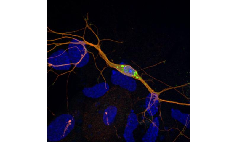 A better model for Parkinson's disease