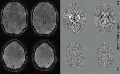 Accelerated MRI brain mapping technique to improve neurodegenerative diagnosis