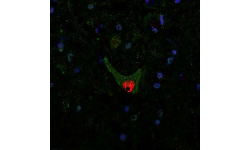 Aggregated protein in nerve cells can cause ALS