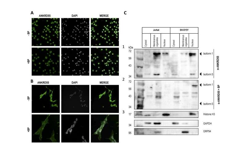 ANKRD55: A new gene involved in Multiple Sclerosis is discovered