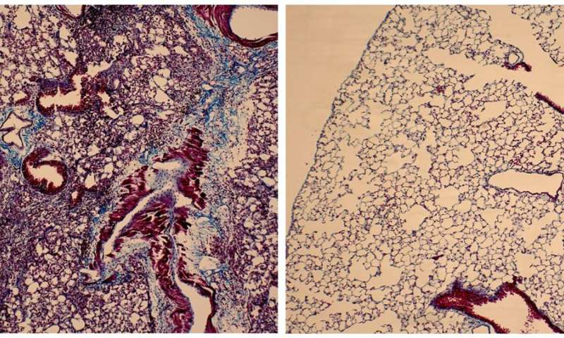 Anti-fibrotic peptide shows early promise against interstitial lung disease