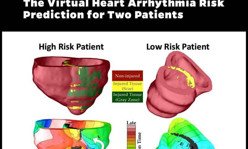 A personalized virtual heart predicts the risk of sudden cardiac death