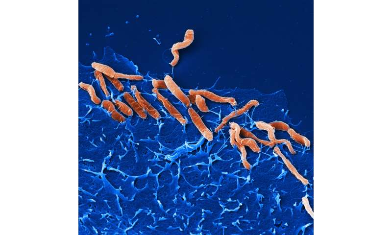 A special bond: New receptors discovered for Helicobacter pylori