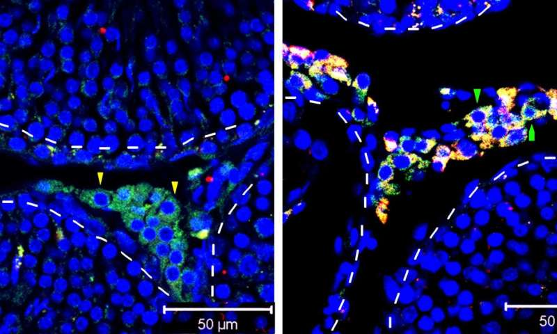 A stem cell strategy for boosting testosterone levels tested in rodents