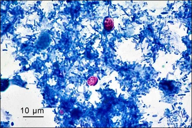 A 'tropical' parasitic disease emerges in the Canadian Arctic
