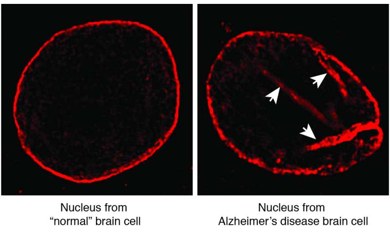 Brain cell death in Alzheimer's linked to structural flaw