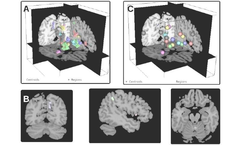Brain modulyzer provides interactive window into the brain