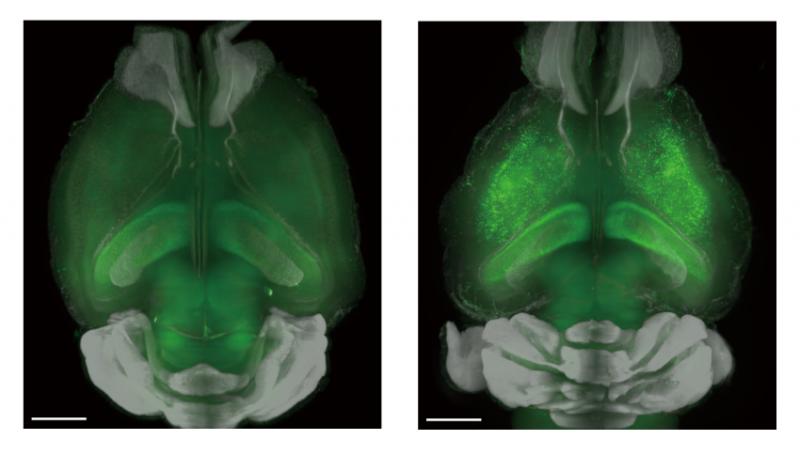 Calcium controls sleep duration in mice