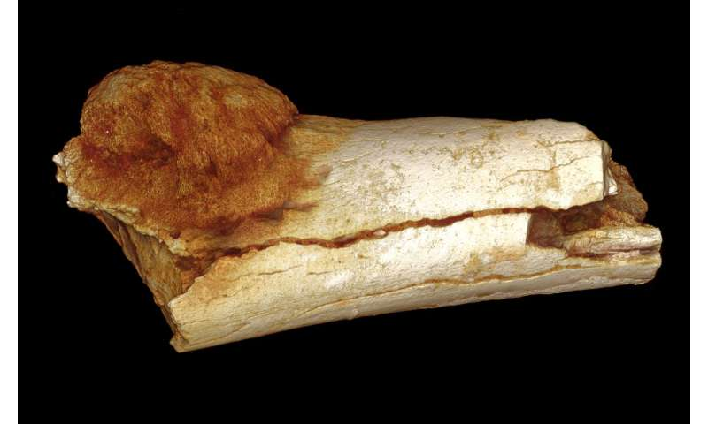 Cancer on a Paleo-diet? Ask someone who lived 1.7 million years ago