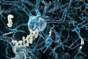 Cerebrovascular disease linked to Alzheimer's