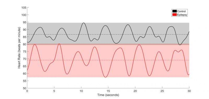 Changes in heart activity may signal epilepsy