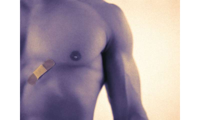 Cold-induced lipolysis effective for male pseudogynecomastia
