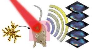 Compound boosts contrast of photoacoustic images