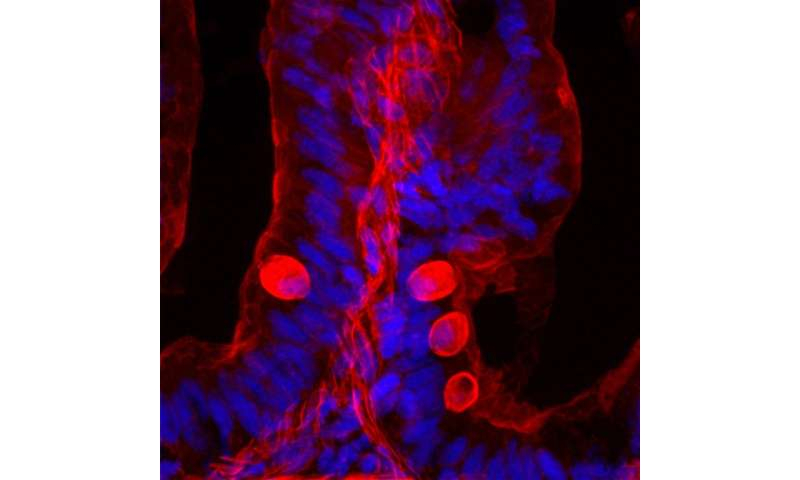 Controlling cell turnover in the intestinal lining