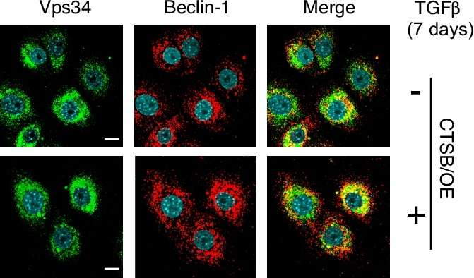 Dab2 regulates autophagy: New insights into mechanisms of chemo-resistance and metastasis