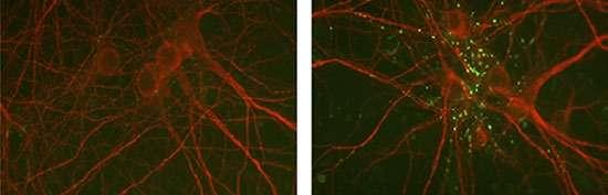 Decrypting a collagen's role in schizophrenia