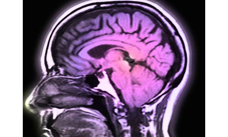 Deep brain stimulation tested for early alzheimer's