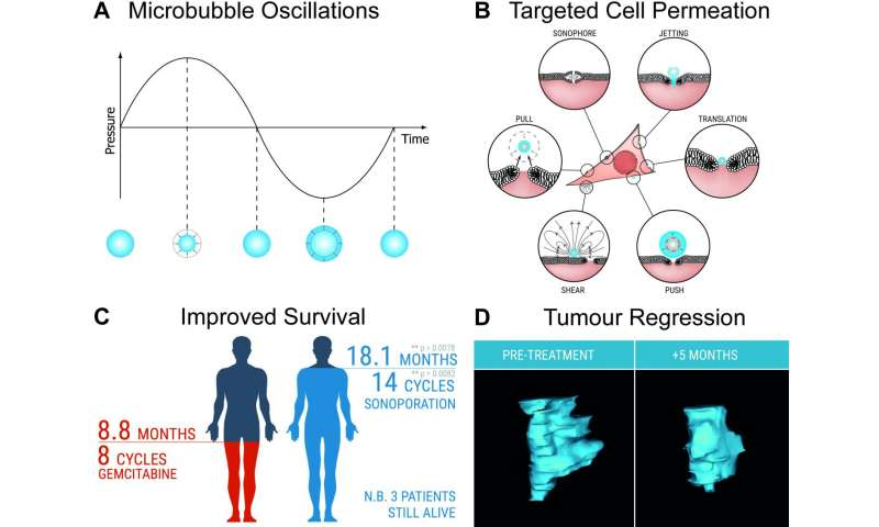 Dialing up chemotherapy for pancreatic cancer with ultrasound
