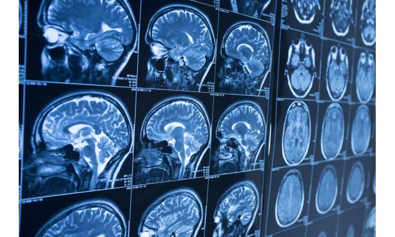 Difficult decisions involving perception increase activity in brain's insular cortex, study finds