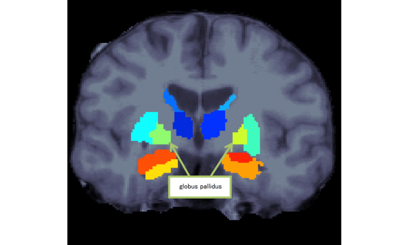 Discovery of the characteristics of subcortical regions in schizophrenia