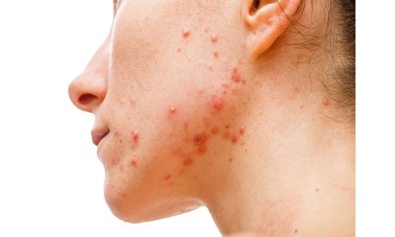 Drop in <i>S. aureus</i> carriage rate with antibiotic tx of acne