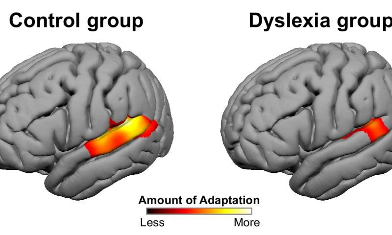 Dyslexics show a difference in sensory processing