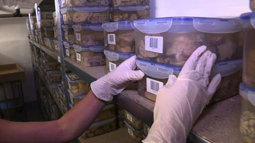 Each pickled brain comes with its own medical file kept up until the death of the patient