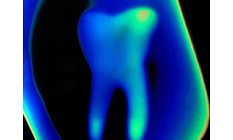 Fever not associated with primary tooth eruption
