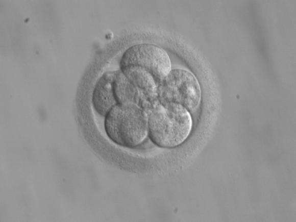 For frozen embryos in dispute, scholars propose guidelines