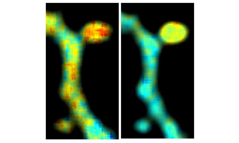 FRET-FLIM optimization shows activity of two signaling molecules in single dendritic spine