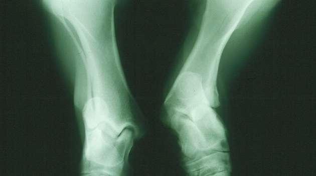 Gene test reveals severe skeletal disease in Shetland ponies