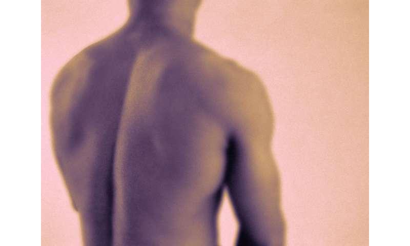 Guidelines developed for ankylosing spondylitis treatment