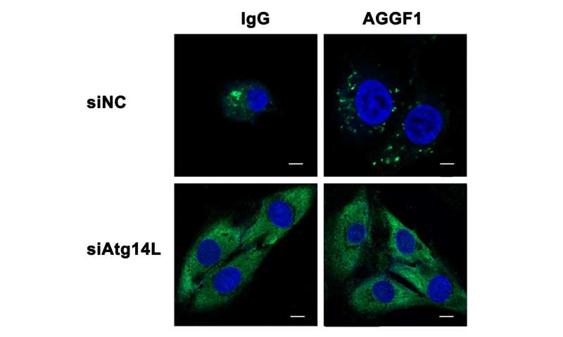 Heart bypass without surgery? -- AGGF1 induces therapeutic angiogenesis through autophagy