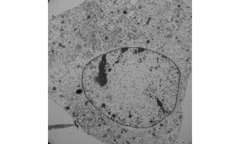 How cells die by ferroptosis