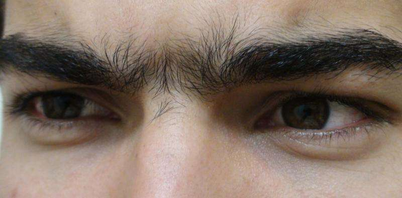 How researchers discovered the genetic origin of the 'unibrow' and other hair traits