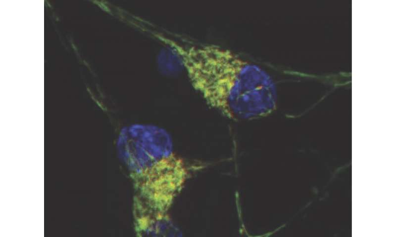 Impaired Recycling Of Mitochondria In >> Impaired Recycling Of Mitochondria In Autism