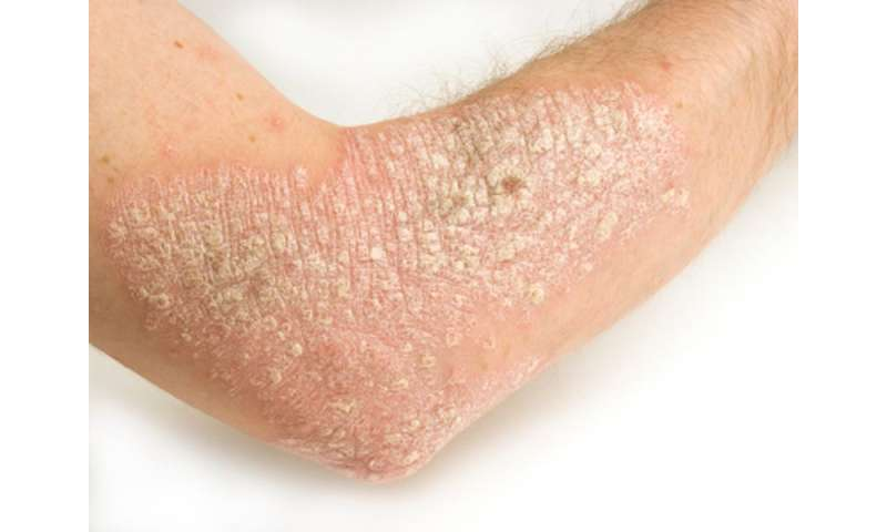 Increased global, subcutaneous inflammation in psoriasis