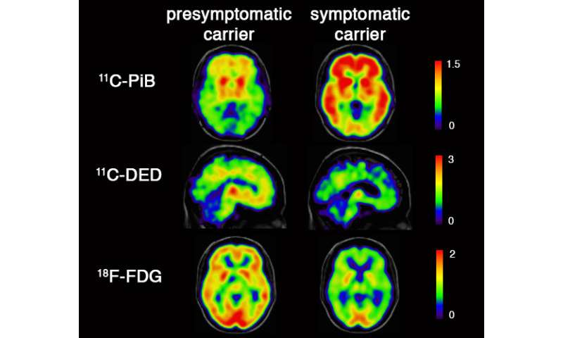 Inflammatory changes in the brain twenty years before Alzheimer onset